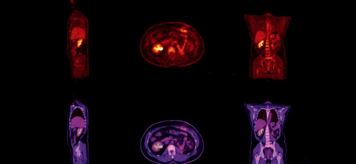 PET Scan image of whole body Comparison Sagittal, Axial and Coro